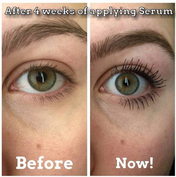 Eyelash And Eyebrow Growth Serum And Makeup Remover Also Comes In