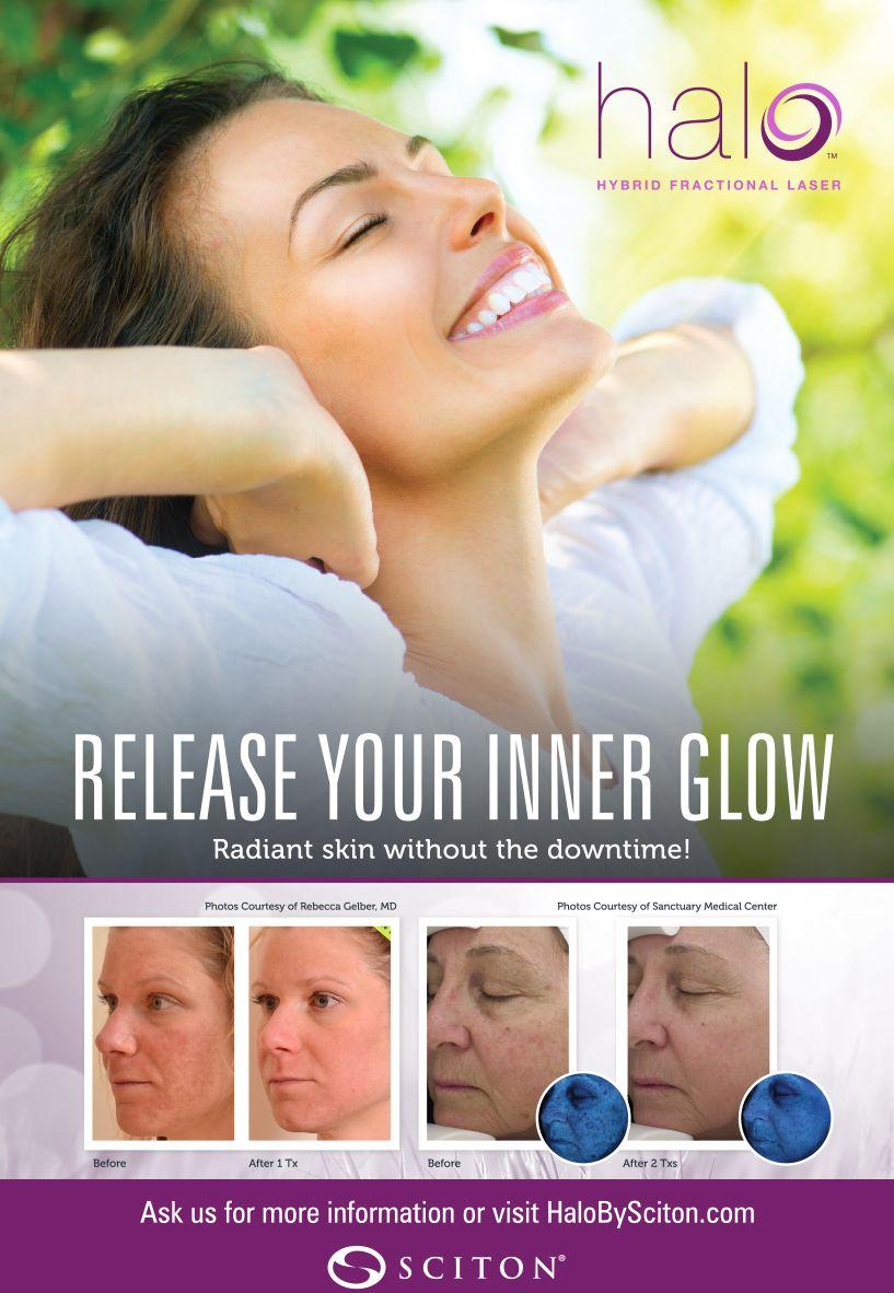 Grandview Aesthetic Center Bbl Laser Glowing Radiant Skin Skin Resurfacing