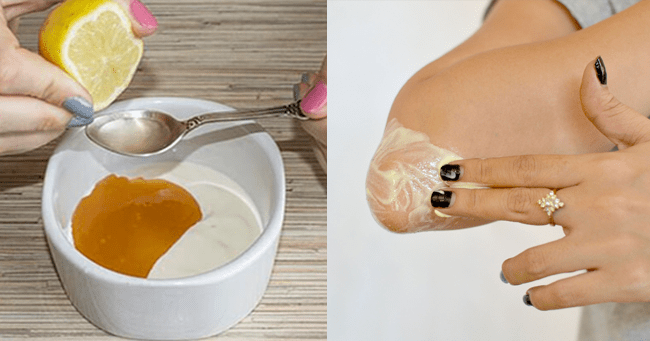 How To Get Rid Of Dark Knees And Elbows In 10 Days ...