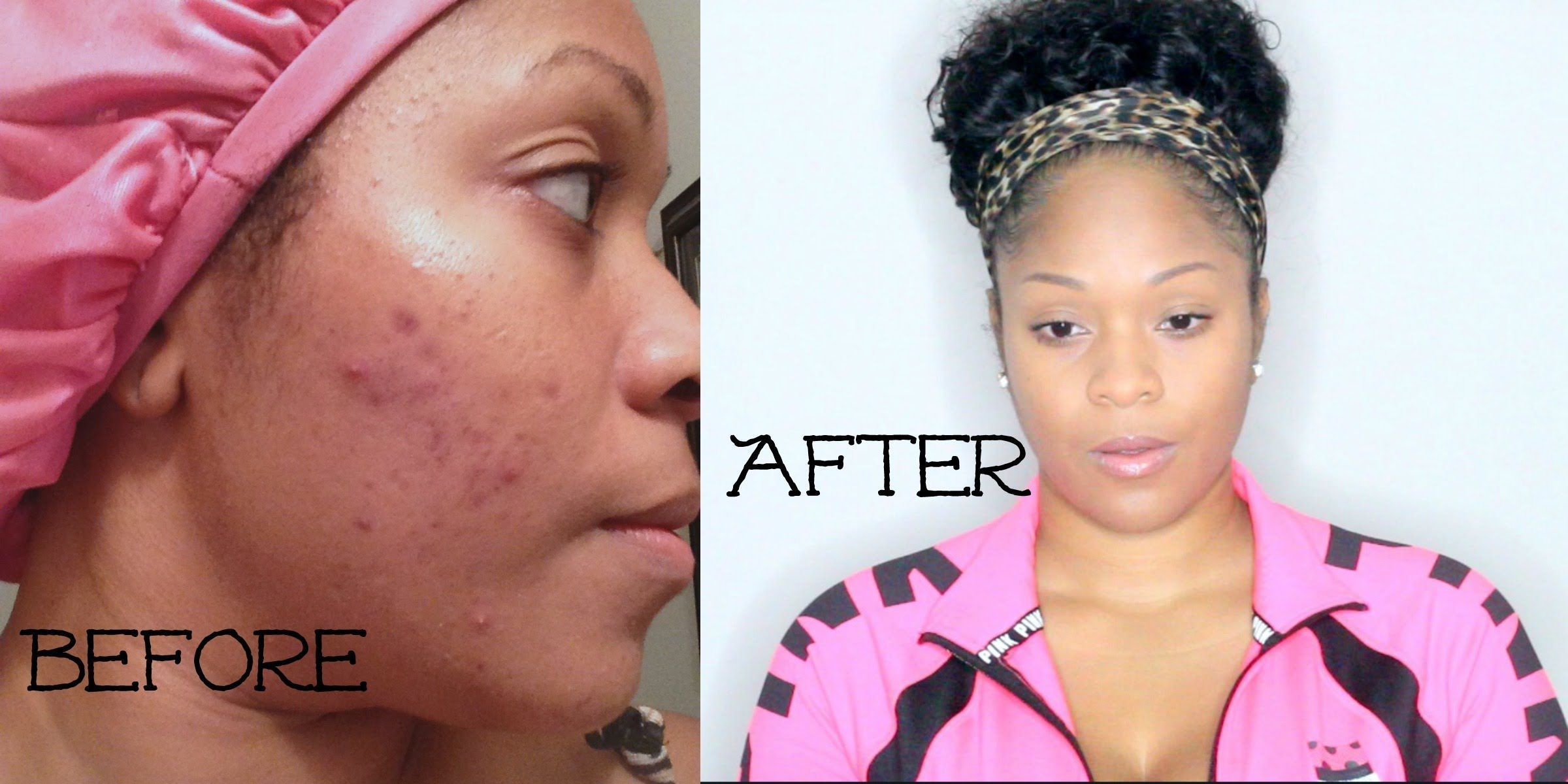 How to stop acne breakout fast get rid of pimples