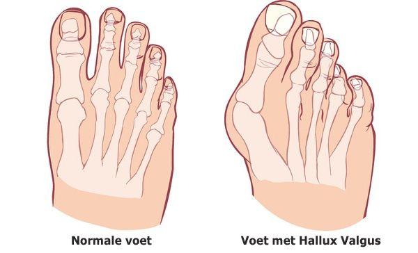 artrose voet wreef