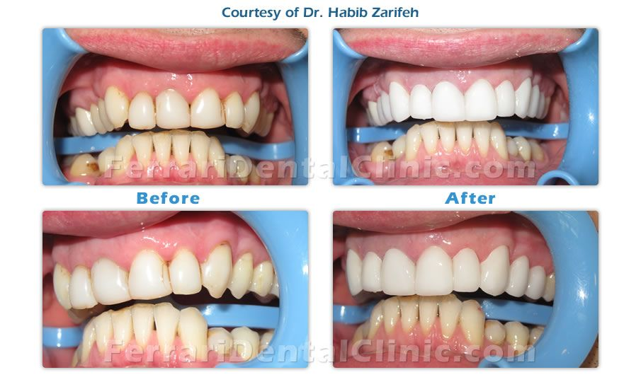 The Best Hollywood Smile Dentist In Beirut Lebanon Dr Habib Zarifeh Our Services Includes Hollywood Smile Dentist Dental Clinic Laser Dentistry Best Dentist
