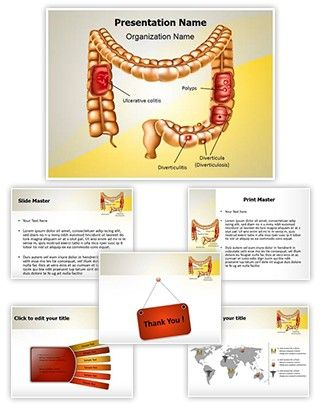 Digestive Colon Pathologies Powerpoint Presentation Template Is