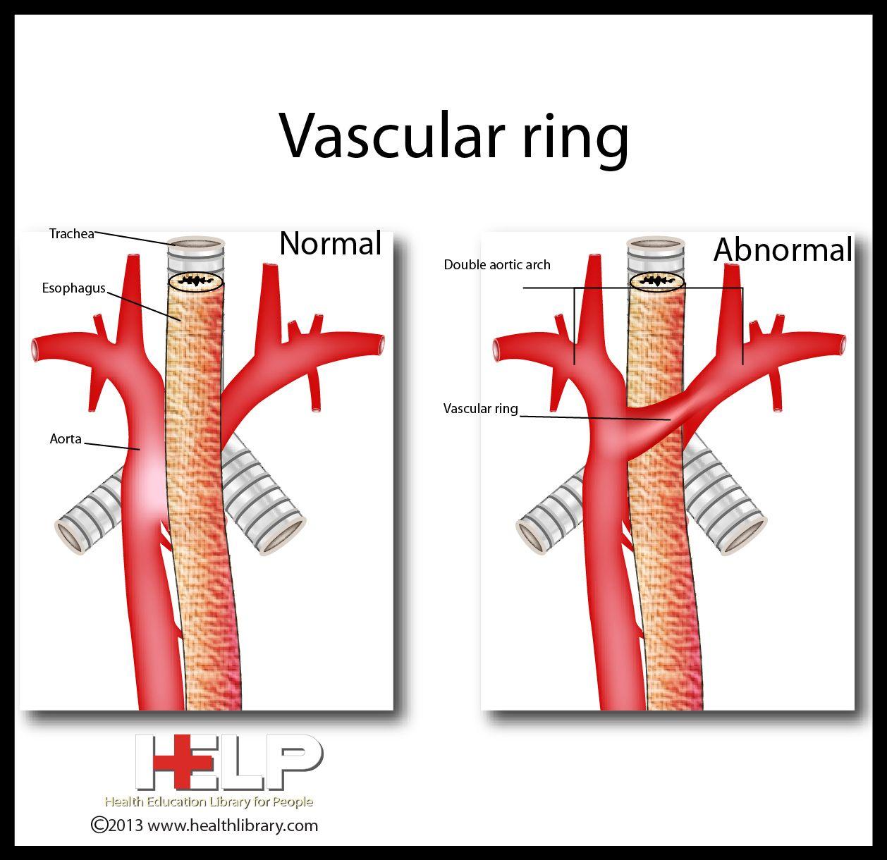 Division Of Vascular Ring