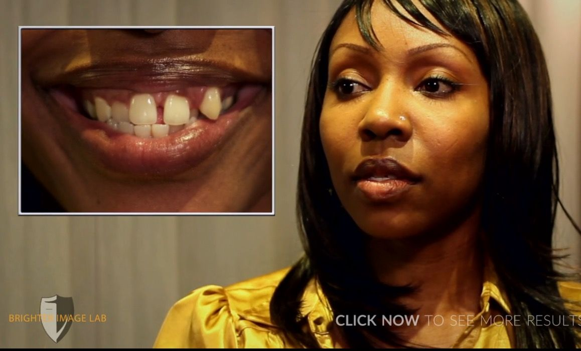 Extreme smile makeover by