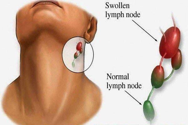 varicoză și ganglioni limfatici