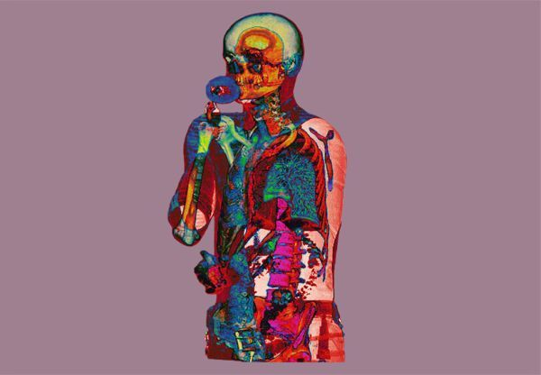 X-Ray portraits