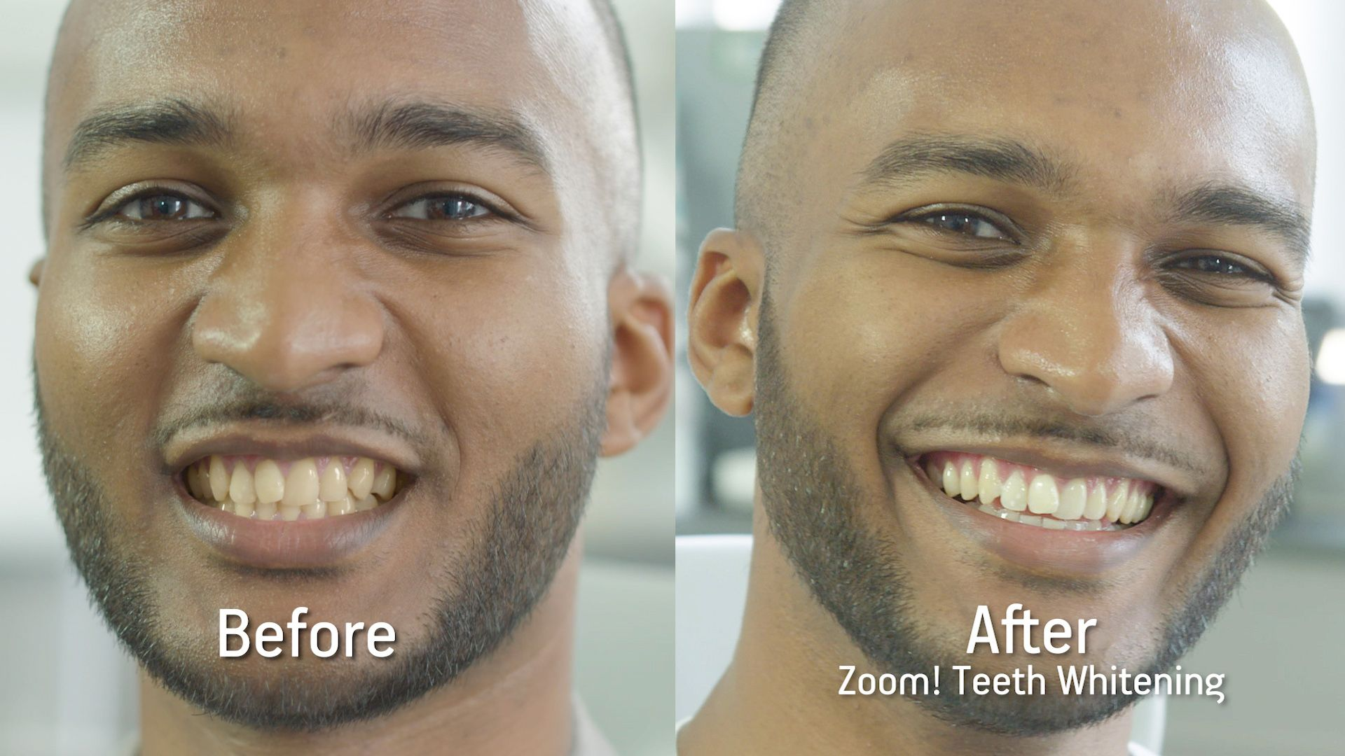 Pin On Tooth Whitening