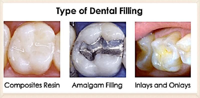 Researchers Find That People Who Drink Alcohol Or Men Who Smoke Are More Likely To Suffer A Failed Dental Filling The Dental Fillings Dental Dental Treatment