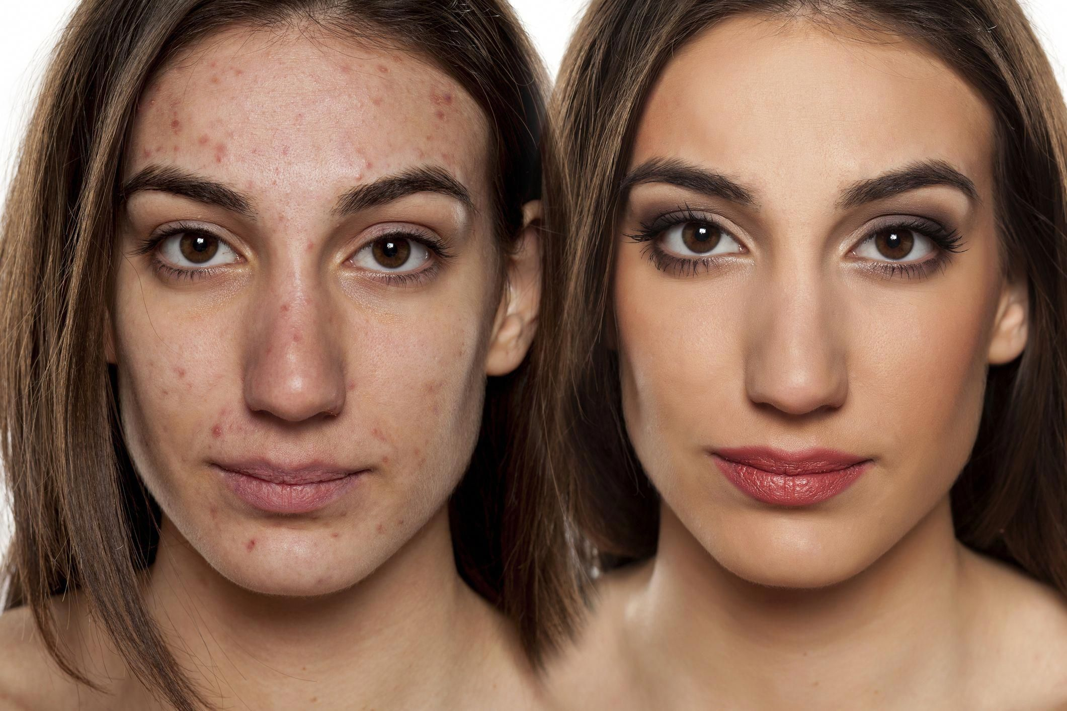 Acne is a skin problem that's so pervasive, it impacts