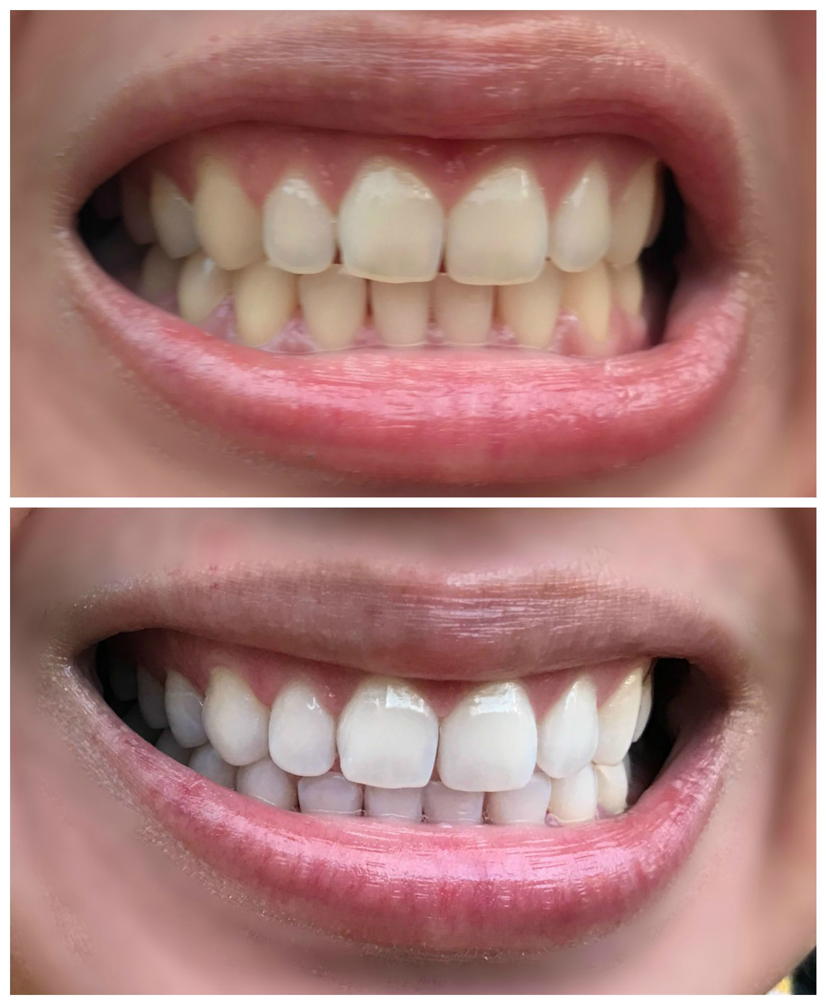 Pin on home remedies for teeth whitening