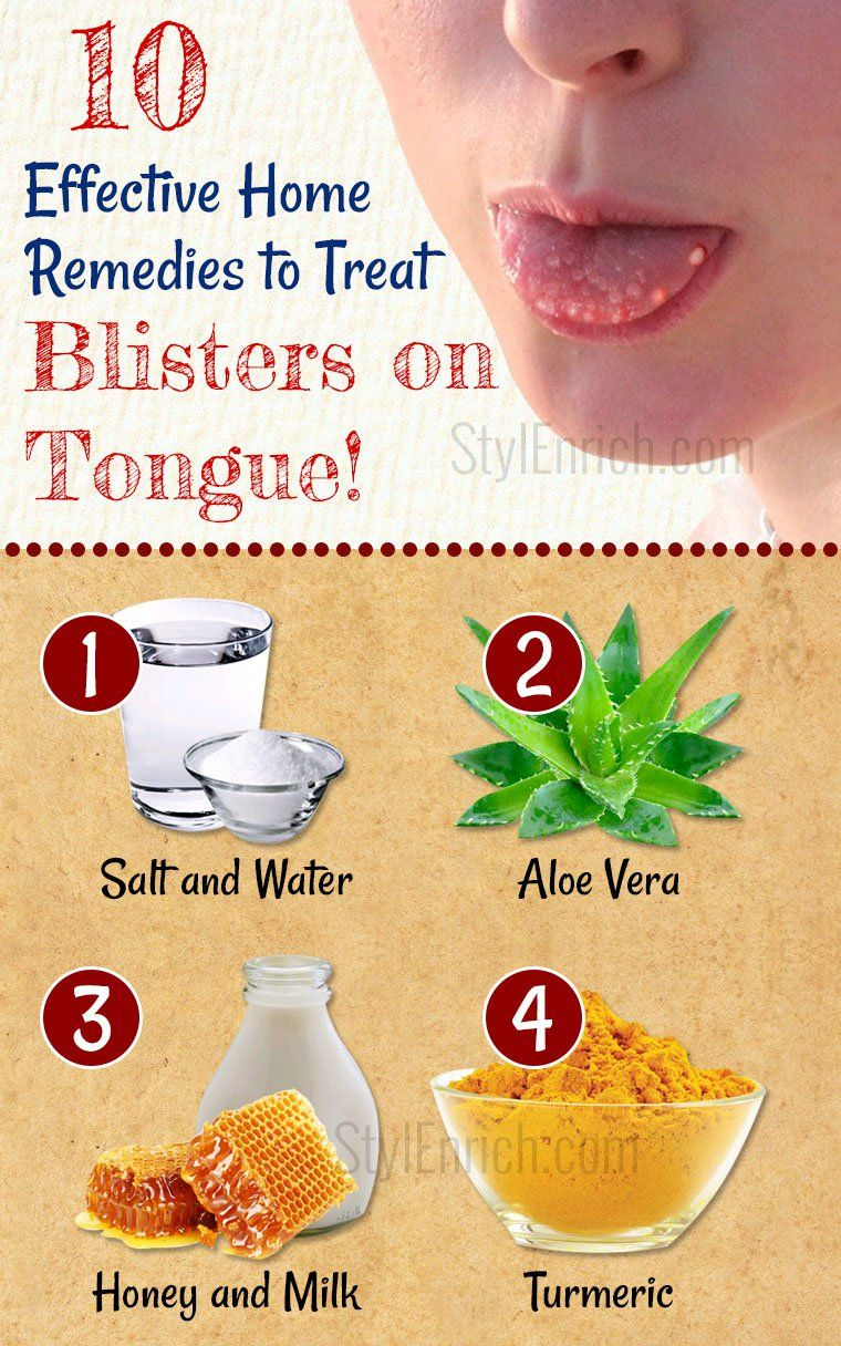 Home Remedies For Blisters On Tongue How To Treat Tongue