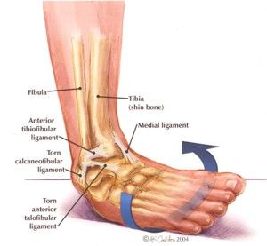 inversion ankle sprain- this is how bad I supinate when I ... Ankle Pronation Surgery