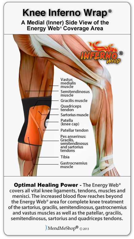 Pin On Trigger Points