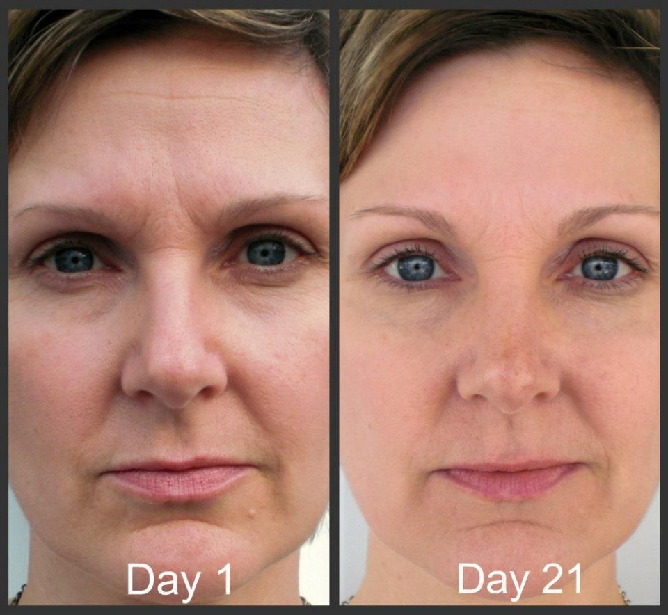Do you believe in magic neriumad results speak for