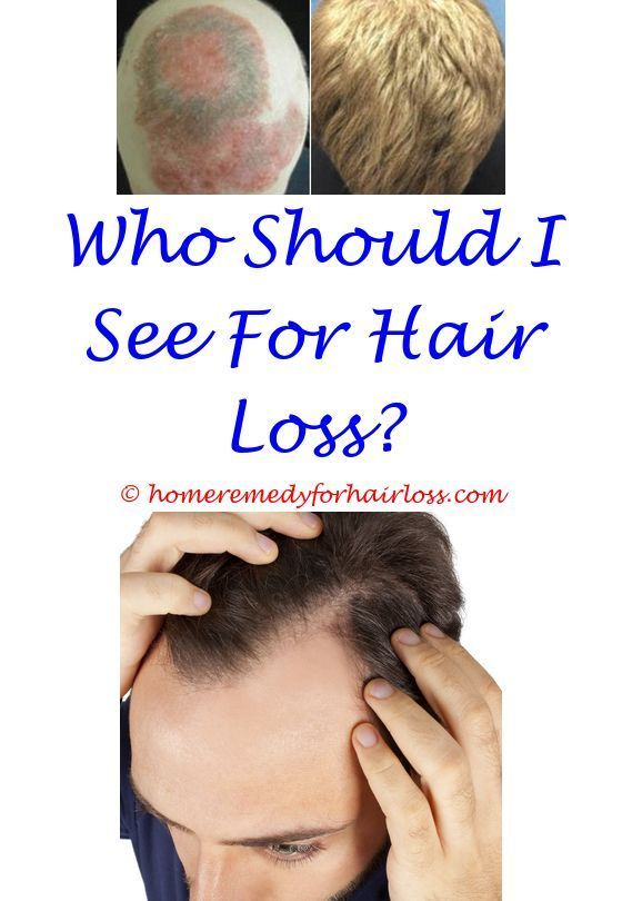 hair loss questions - can scalp acne cause hair loss ...