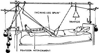 1 37 Skeletal Traction For The Femur Nursing Study Nclex Nclex Study
