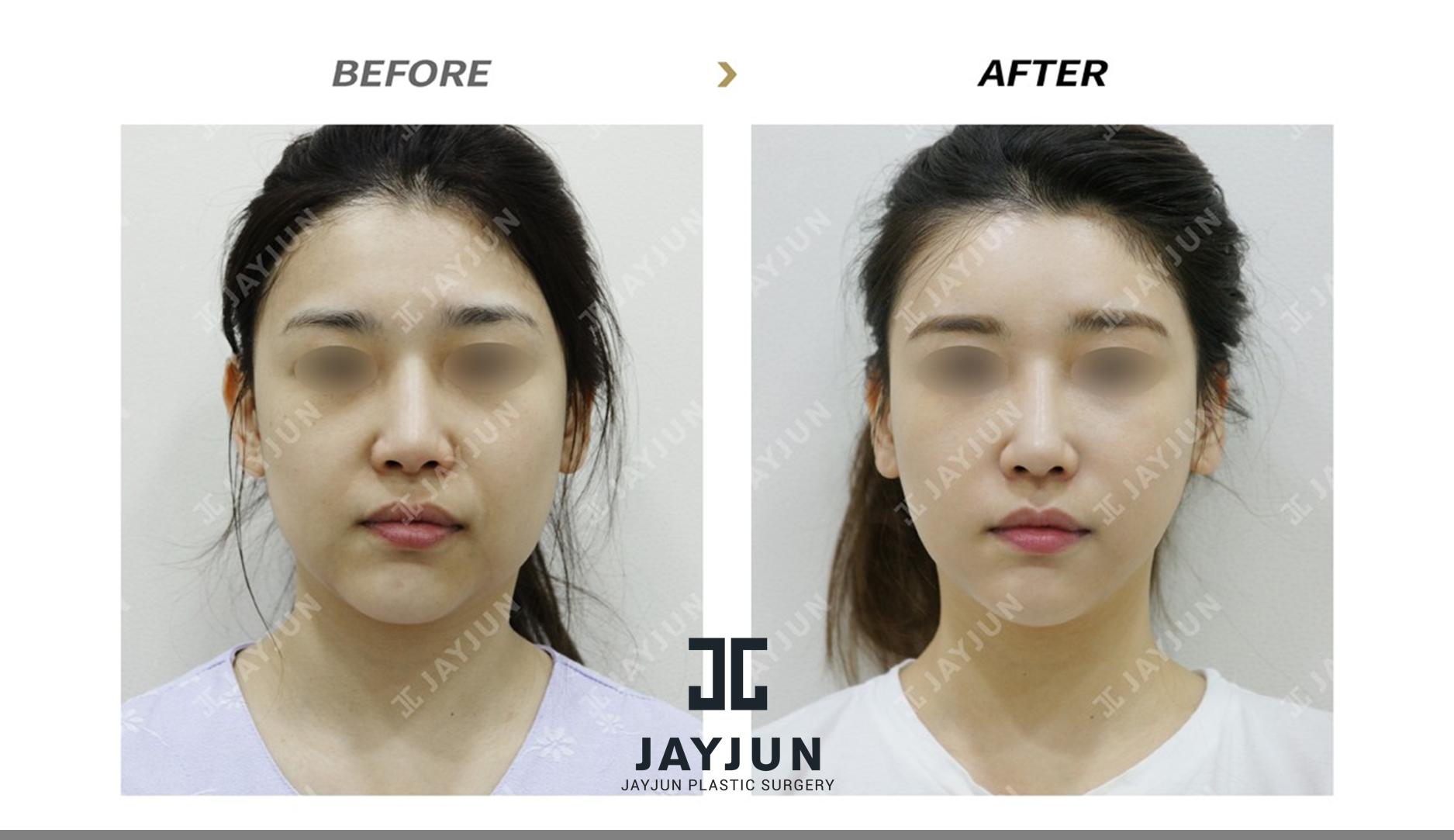 korean women plastic surgery top plastic surgery in korea top korean