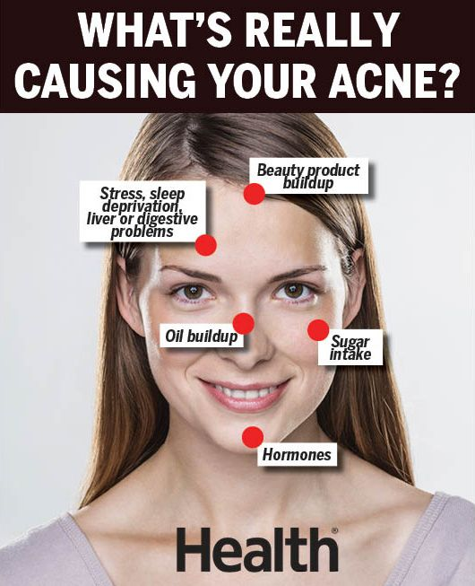 Acne Face Mapping Can Reveal The True Cause Of Your