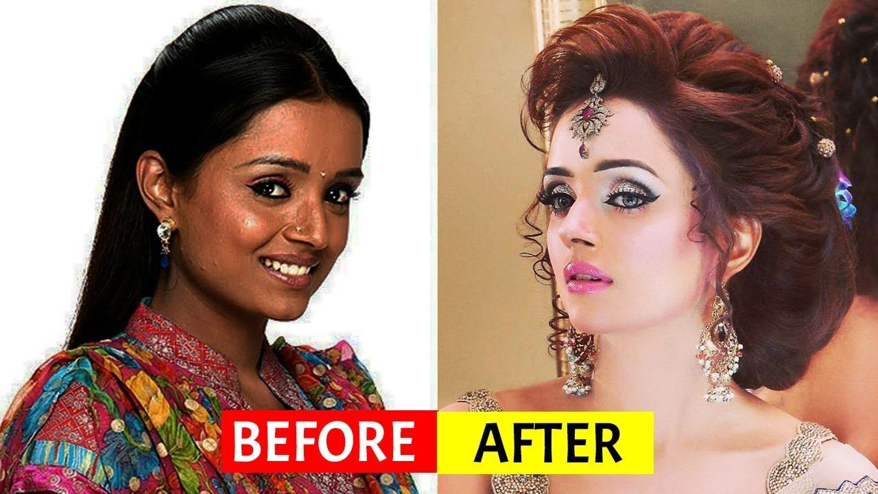 pin on actresses surgery before and after photos