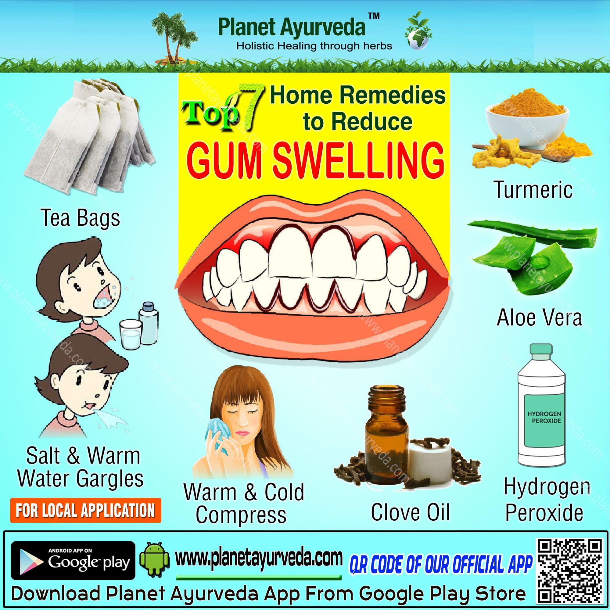 Top 7 Home Remedies To Reduce Gum Swelling Turmeric Aleovera Hydrogenpreoxide Cloveoil Warm Coldcompress Swollen Gums Remedy Oral Hygiene Swollen Gum