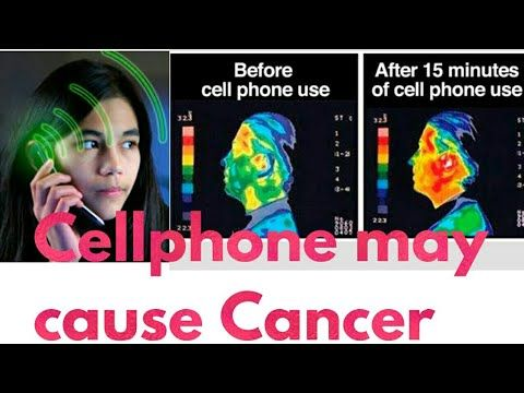DOES CELLPHONE RADIATION CAUSE CANCER (A DETAIL ANALYSIS) - WATCH VIDEO HERE -> http://bestcancer.solutions/does-cellphone-radiation-cause-cancer-a-detail-analysis    *** radiation causes cancer ***   Hi friends,this video is about the relation between cellphones and cancer.Does cellphones cause brain cancer? Is your smartphone causing tumor? What types of radiation does your cellphone emit?does it emit ionizing radiation or it emits non ionizing radiation?...