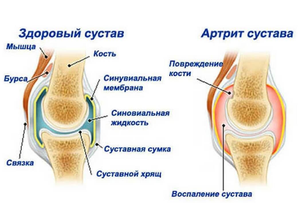 Гигрома кисти руки лечение фото
