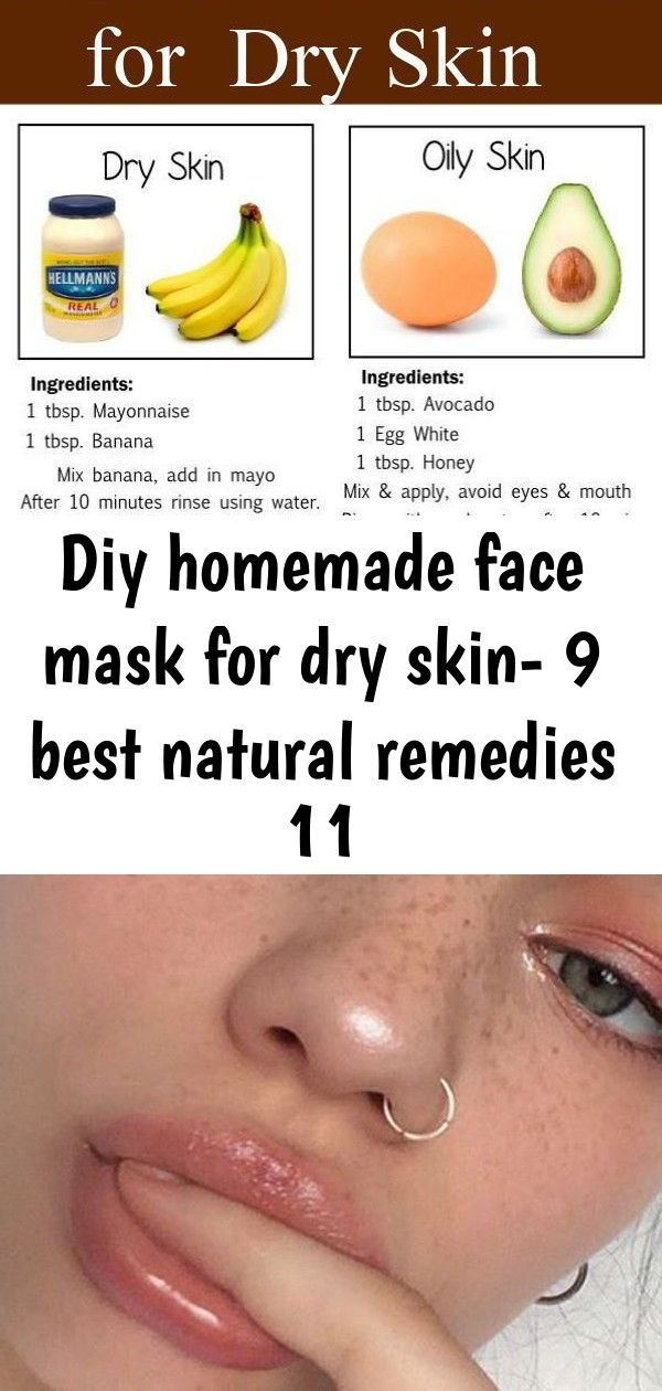Photo of Diy homemade face mask for dry skin- 9 best natural remedies 11