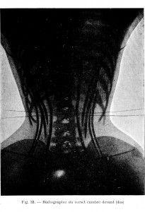 d02018537f Vintage X-Ray  woman wearing a whale bone corset. 1908.