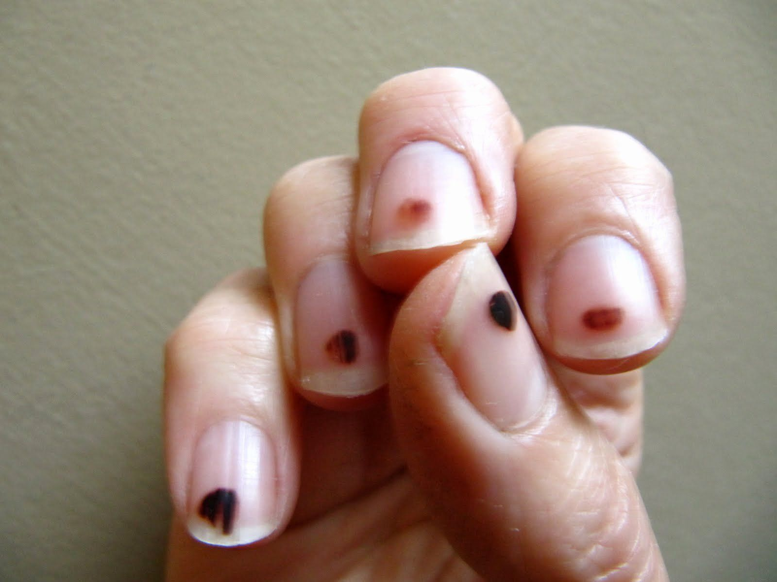 Black Dot On Nail Luxury Black Spot On Toenail Causes Treatments And Prevention In 2020 Black Lines Under Nails Black Nails Black Nail Designs