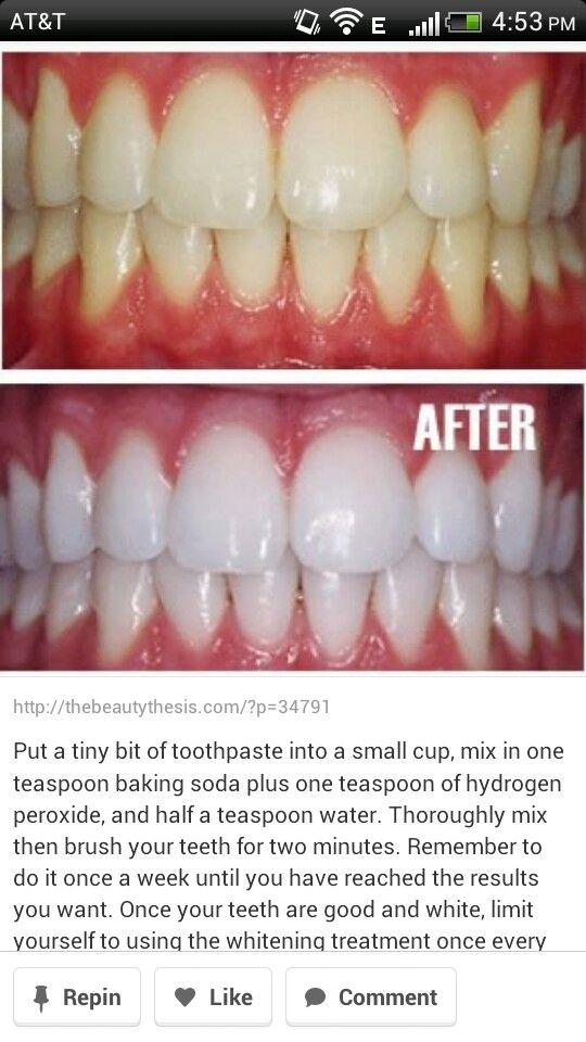 Snap On Teeth Health And Beauty Beauty Hacks Diy Beauty