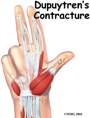 best 25+ dupuytren's contracture ideas on pinterest | hand surgery, Skeleton
