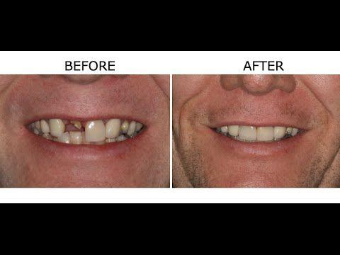 Cosmetic Dentistry - Centennial Dentist - Aspen Springs Dental (720) 370-7529 - Cosmetic Dentists in Centennial COCentennial Dentist – Aspen Springs Dental (720) 370-7529 – Cosmetic Dentists in Centennial CO