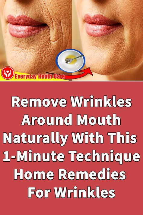 Remove Wrinkles Around Mouth Naturally With This 1