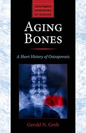 15++ Aging bones a short history of osteoporosis viral