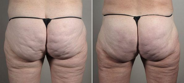 Cellfina | Cellulite treatment and Cellulite