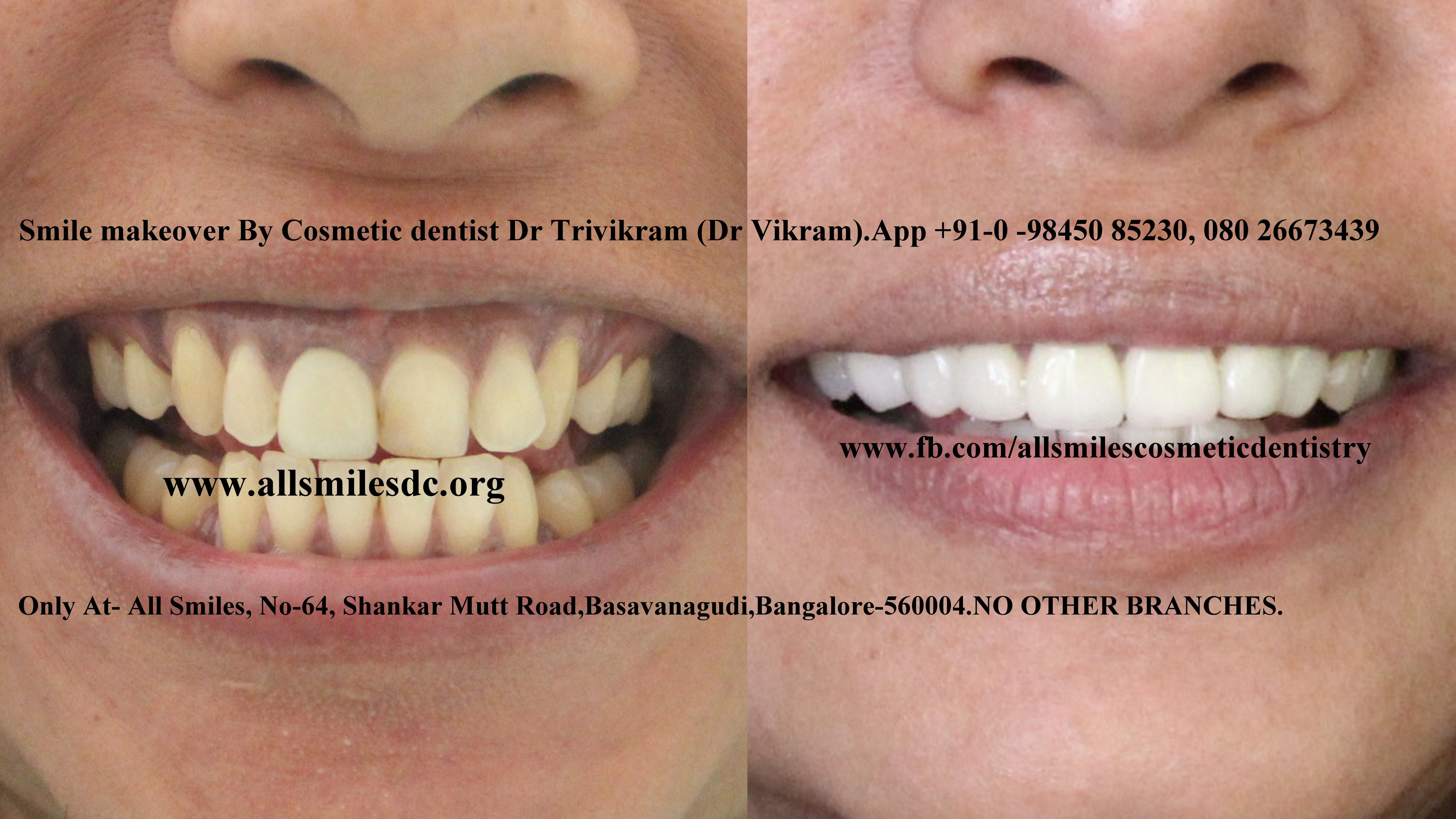 Best Cosmetic Dentist In Bangalore Cosmetic Dentist Cosmetic
