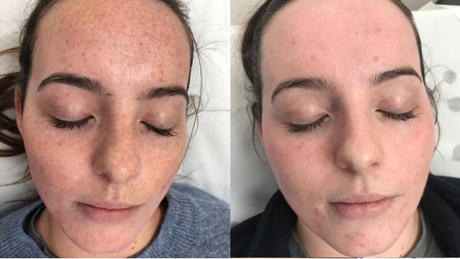 Freckle Removal London | Pulse light, Freckles, Dark skin tone