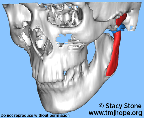 Blog Temporomandibular Joint Tmj Temporomandibular Joint Disorders