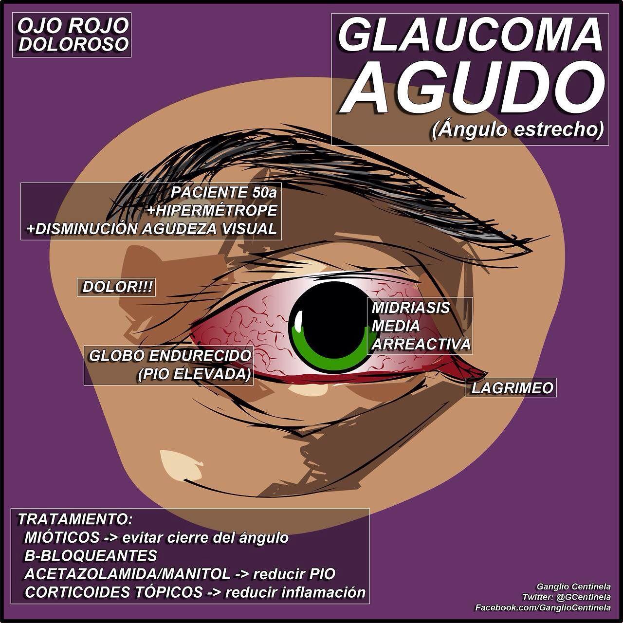 agudo Fuente Fb ganglio centinela Medicine