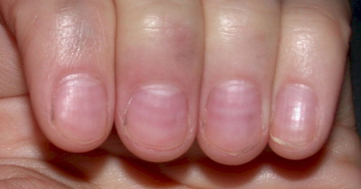 Nails can hold a wealth of information about you, including signs of ...