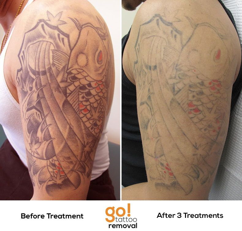 Better than 60% fading after 3 laser tattoo removal treatments of ...