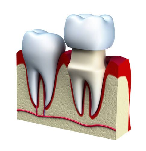 When You Have A Loose Crown Or A Missing Crown Sensitive Areas Of Your Teeth Are Exposed To Bacteria That Can Lead To In Dental Crowns Dental Cosmetics Dental