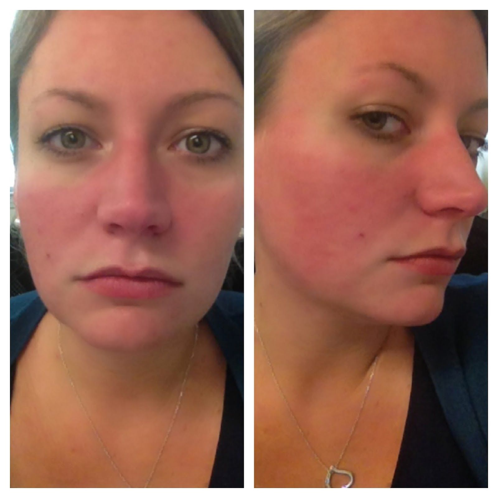 Blog About Rosacea And Flushing Mast Cell Activation Syndrome Mast Cell Hashimotos Disease Symptoms