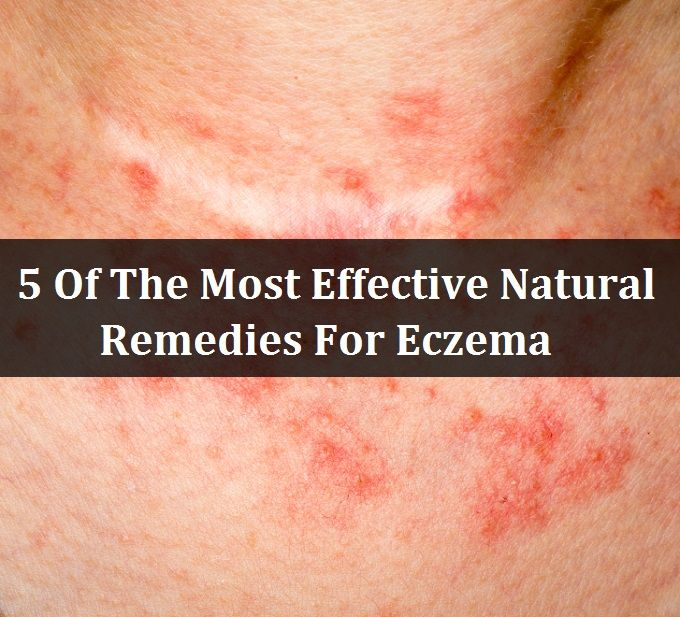 13 Home Remedies To Get Rid Of Eczema That Really Work