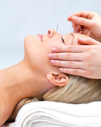 $28 for a Cosmetic Acupuncture Face Lift | dealcountry.com ...
