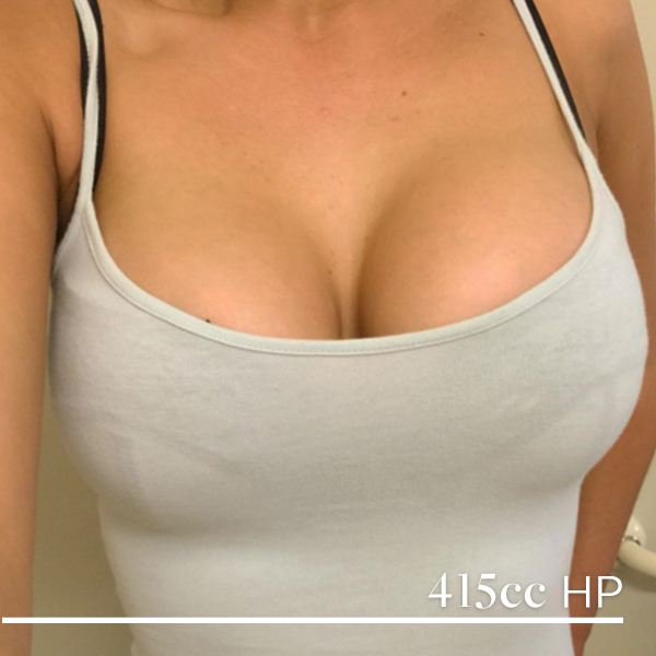 Reduction postop breast
