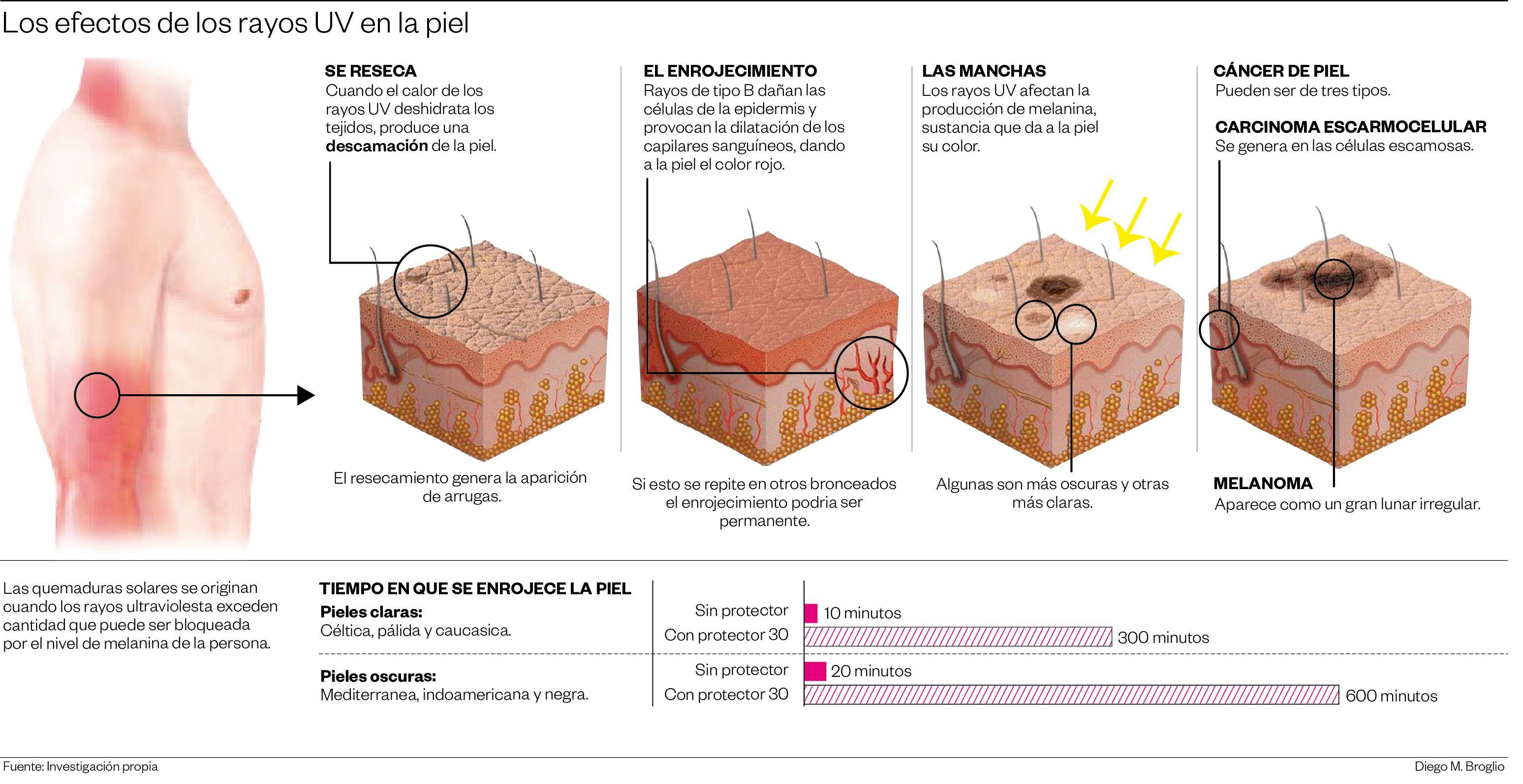 Los efectos de los rayos UV en la piel - CANCER DE PIEL INFOGRAFIA ...