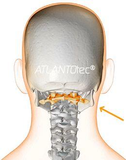 1 vertebra cervicale disallineata pu portare a dolori for Mal di testa da cervicale quanto puo durare