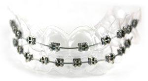 FakeBraces net: Custom Fake Orthodontic Braces for your